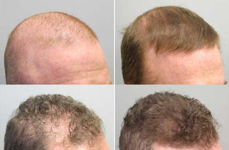 Using Finasteride To Treat Hair Loss Picante Today Hot News Today
